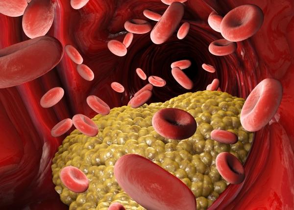 Tutkijat löysivät uuden kolesterolitasoa säätelevän mekanismin
