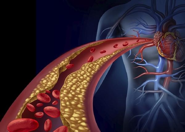 Moni potilas hyötyisi kolesterolilääkkeiden yhdistelmähoidosta
