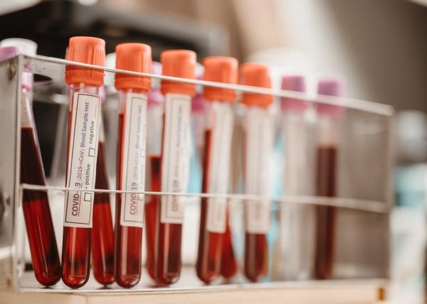 Koronaviruksen vasta-aineet säilyvät luultua pidempään