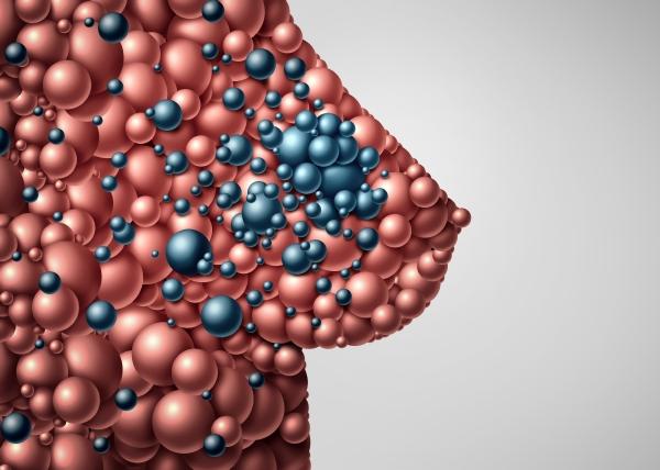 Laihdutus pienentää riskiä sairastua rintasyöpään