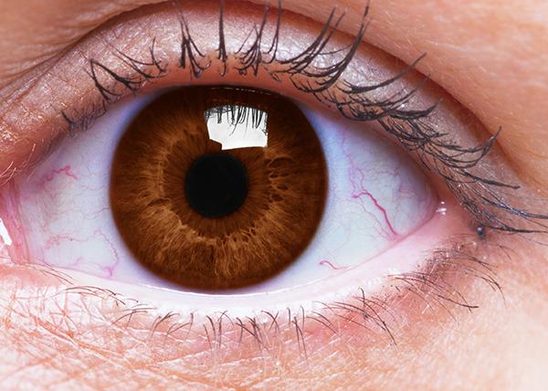 Silmänpohjan ikärappeuma tulee yleistymään Euroopassa väestön ikääntymisen myötä.