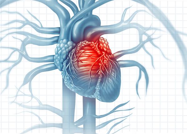 Oireeton sydäninfarkti yhtä vaarallinen kuin tavallinen