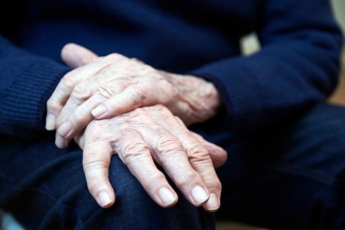 C-hepatiitti mahdollisesti Parkinsonin taudin riskitekijä